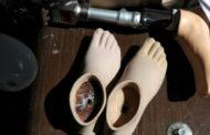 Trabalhadores podem usar FGTS para a compra de próteses e órteses